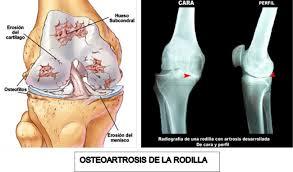 Artrosis con RX
