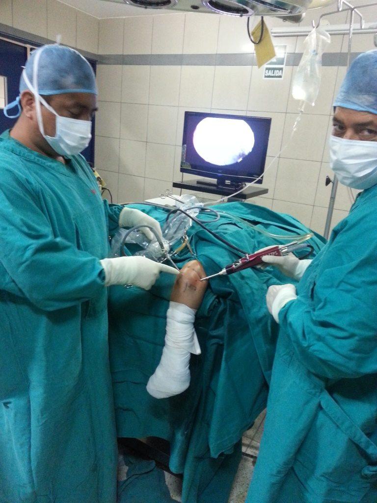 Artroscopia de codo
