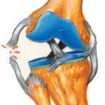 Rotura de ligamento lateral de la rodilla