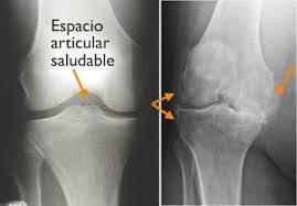 RX sin artrosis y con artrosis