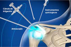 Artroscopia de hombro