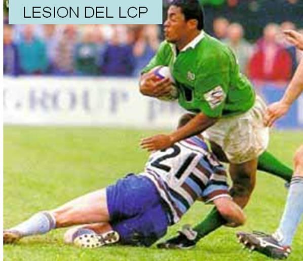 Mecanismo de lesión de LCP