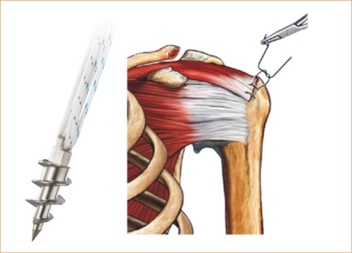 Ancla con sutura de tendón