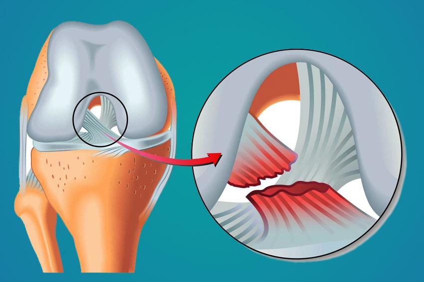rotura-ligamento-cruzado-anterior