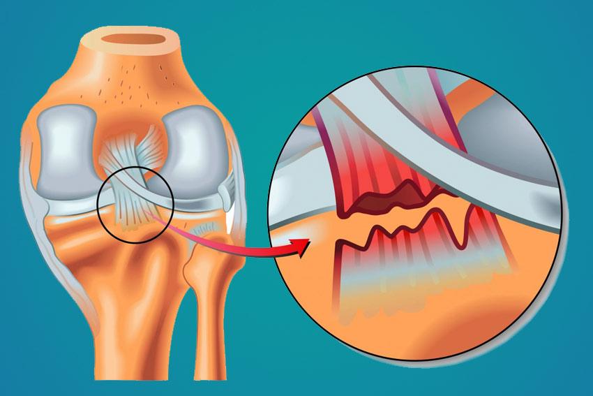 Rotura de Ligamento Cruzado Posterior (LCP) – Artroscopia Lima Peru ...