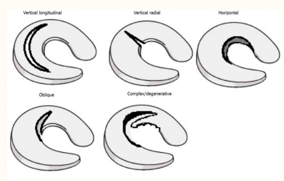 Patrones de rotura de menisco