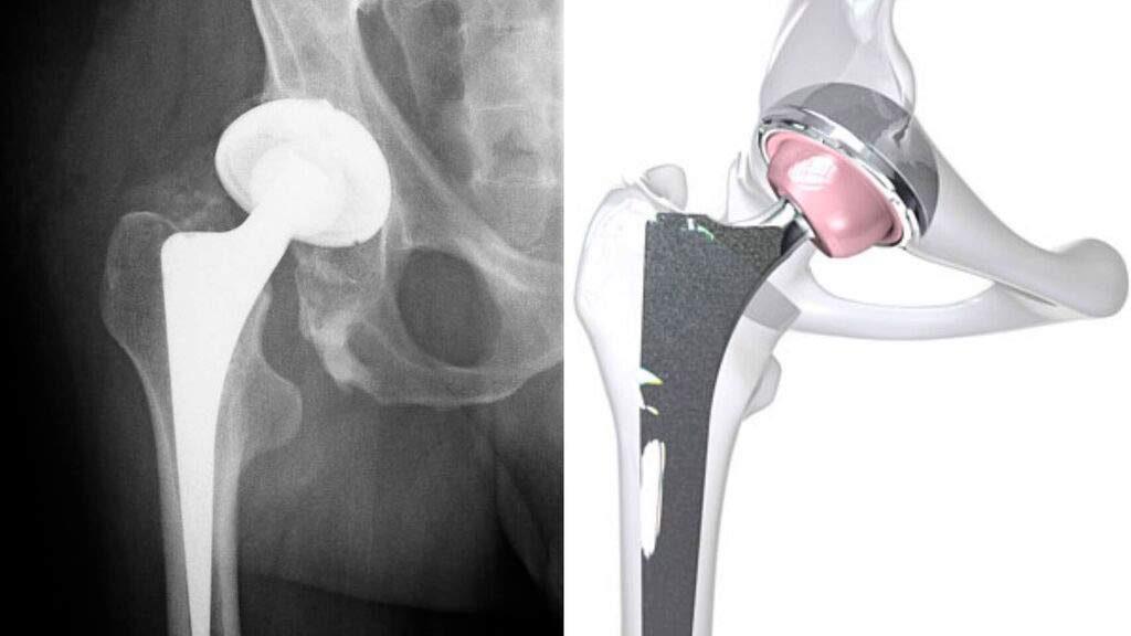 Prótesis cadera
