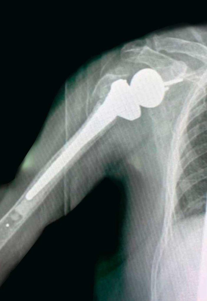 Prótesis de hombro por fractura de húmero proximal