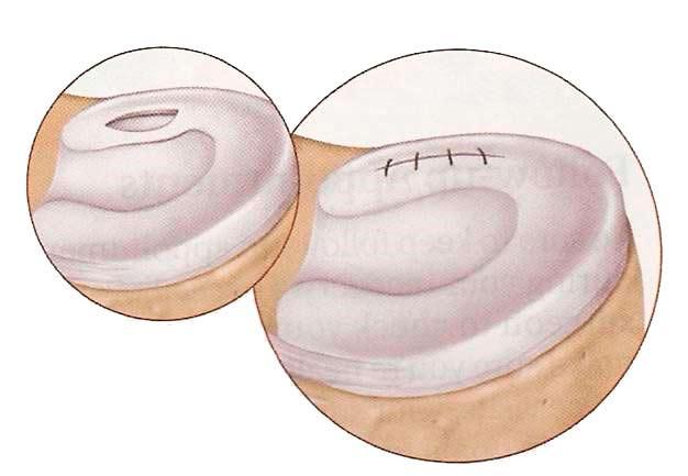 Sutura menisco